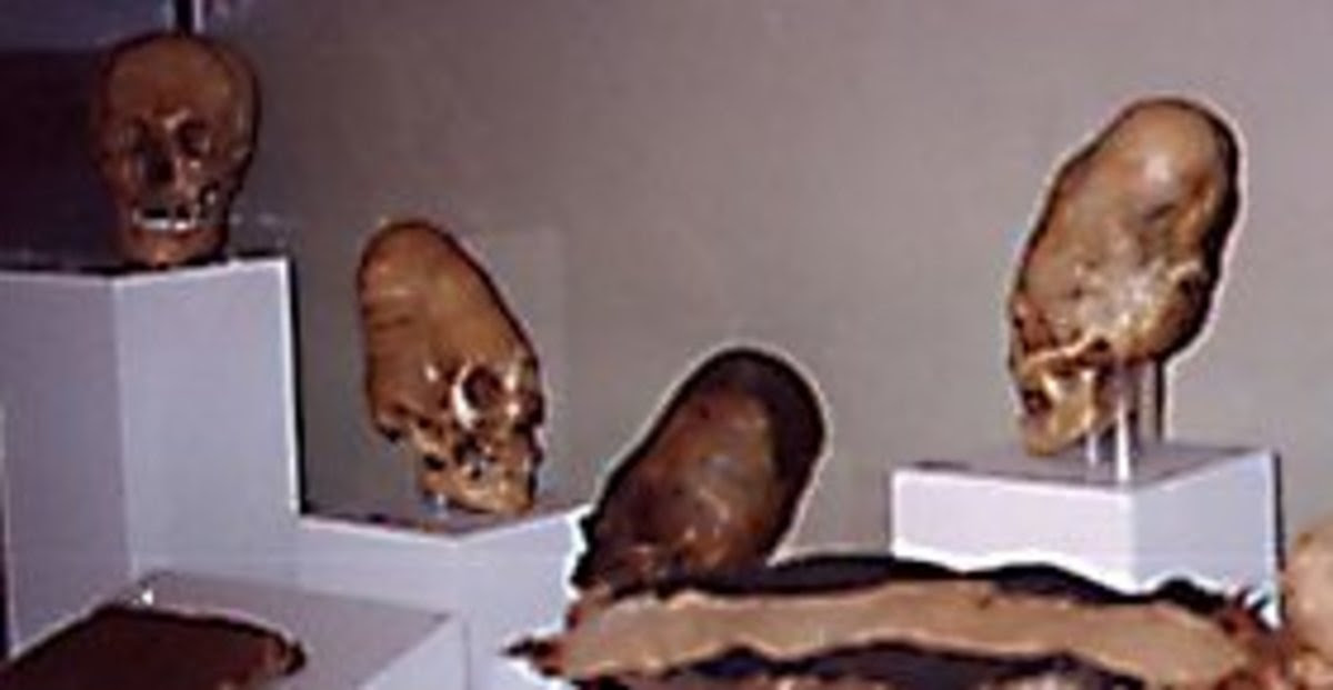 Ica Museum Skulls Peru