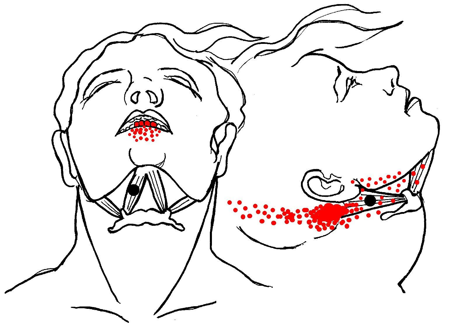 Digastric-pain