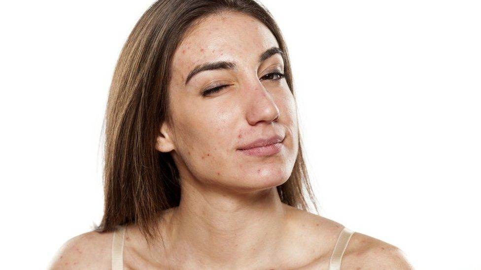 How to get rid of acne using forever nutritional supplements