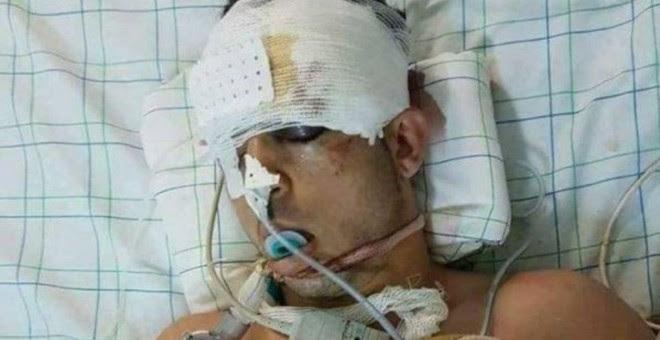 Imagen del joven fallecido durante su estancia en el hospital, difundida por varios medios marroquíes.