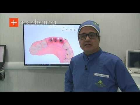 Cos'è la Chirurgia Implantare Guidata? Risponde alla domanda il Dott. Salvatore Ferrara - Odontoiatra e Chirurgo Maxillo Facciale - Napoli