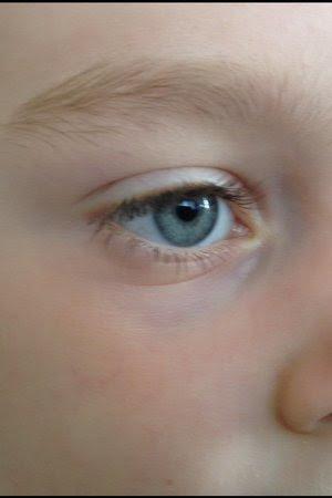 Anyone's kids have dark undereye circles? - Page 5 ...