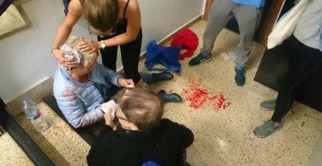 Una mujer herida tras una carga policial