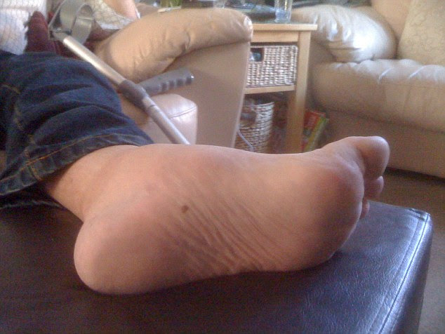 Geoff's side effects included Charcot foot,in which the bones become so fragile that the arch collapses due to lack of blood supply to the tendons and bones