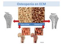 Osteopenia en las enfermedades metabólicas hereditarias (ECM)