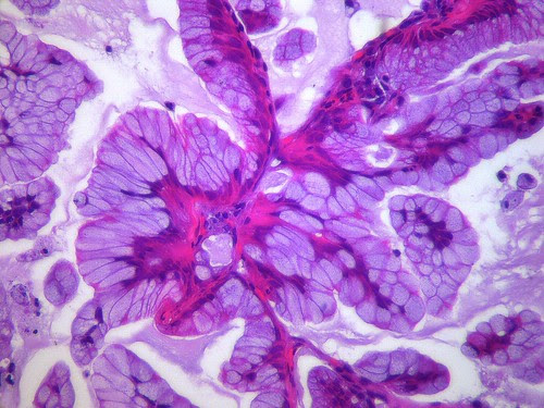 Lung cancer cells