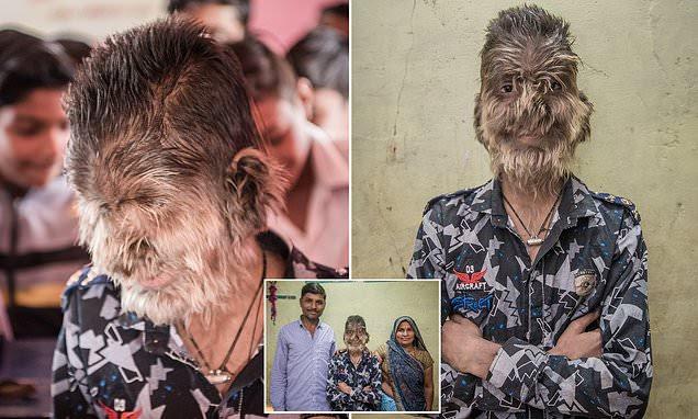 πραγματικός λυκάνθρωπος, πραγματικός λυκάνθρωπος ΙΝΔΙΑ, πραγματικός λυκάνθρωπος της Ινδίας, πραγματικές εικόνες λυκάνθρωπων