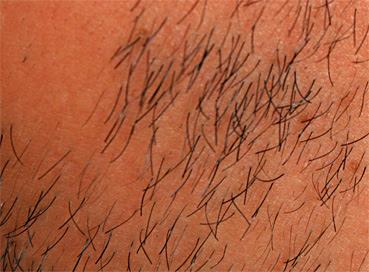 Bartwuchs Aktivieren Und Stimulieren Mehnerinfo