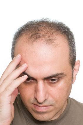 Frisur Männer Lichtes Haar Apriliatinalia Blog