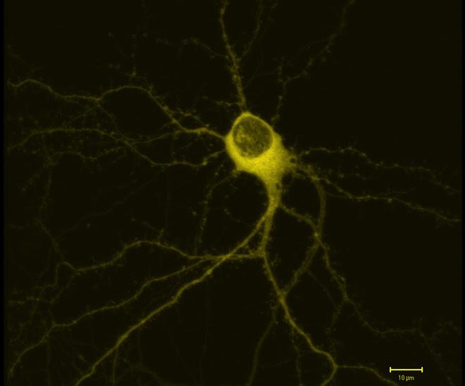 hippocampalneuron