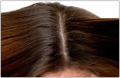 dermatite seborroica e caduta capelli - RELAZIONE TRA DERMATITE SEBORROICA E CADUTA DEI CAPELLI Belli
