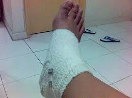 patah kaki