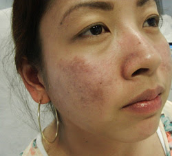 Before and After at M Khan Dermatology and Cosmetic ...
