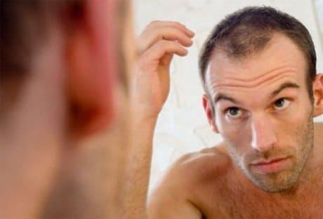 Dutasteride En Alopecia Androgenetica Masculina Y Femenina Blog Teresa Conde