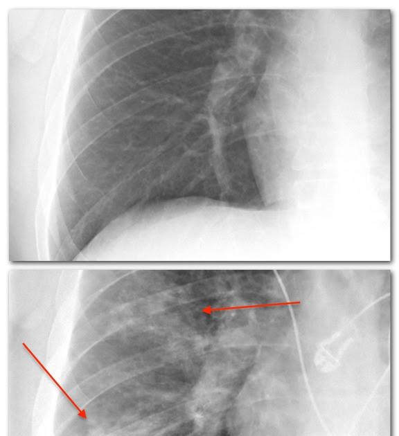 Booklet: Normal Pneumonia Normal Xray Report Normal Pneumonia Normal ...