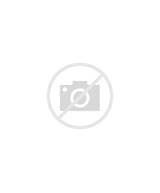 Photos of Knee Ligament Injury