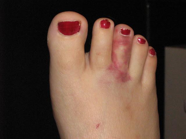 My Horribly Broken Toe | Flickr - Photo Sharing!