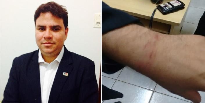 Advogado André Farias Pereira. Lesão causada pela algema.