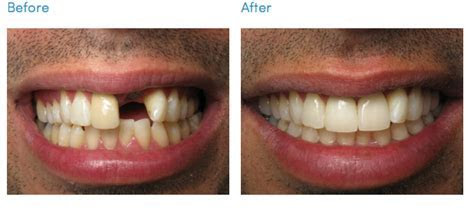 Cosmetic & General Dentistry Blog Los Angeles   South Bay