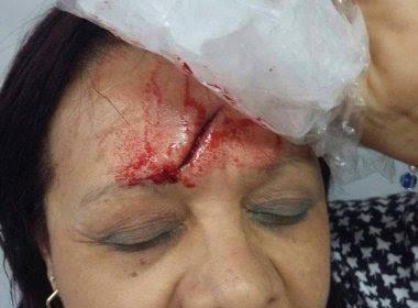 Estudante arremessa porta-lápis e fere vice-diretora de escola municipal em São Paulo