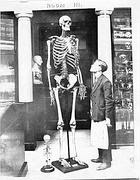 Lo scheletro di Charles Byrne