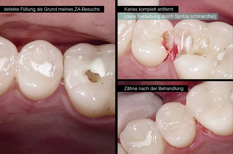 Vom abgebrochen ecke zahn Zahnunfall, stück