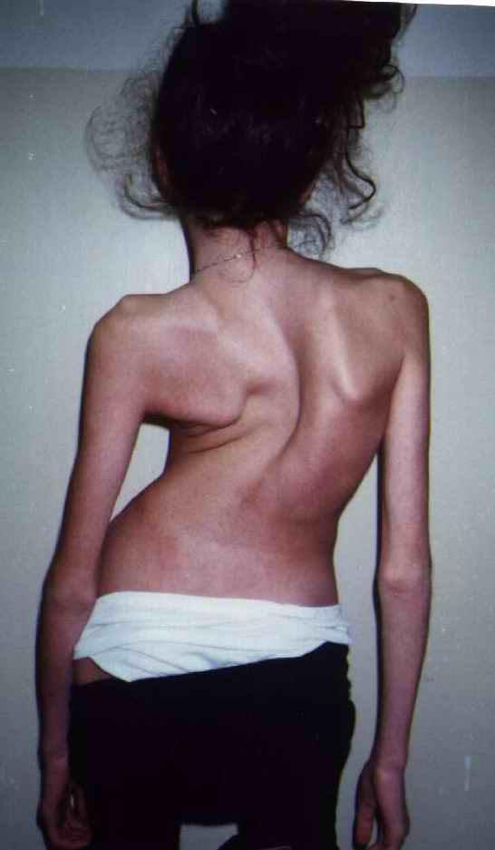 Болит спина как лечить в домашних условиях