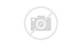 Pain Assessment Tools For Acute Pain Pictures