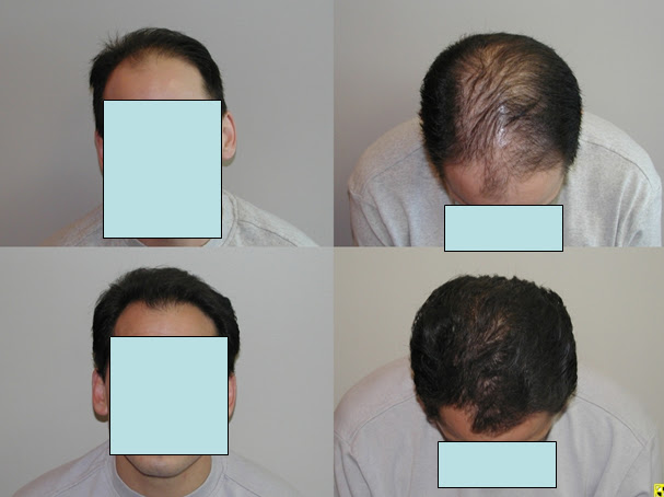 Click Here for regrow hair