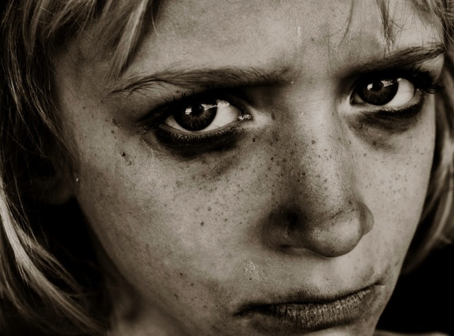 http://www.google.gr/imgres?imgurl=http%3A%2F%2Fitsinterestingdotcom.files.wordpress.com%2F2012%2F09%2Fangry_child.jpg&imgrefurl=http%3A%2F%2Fits-interesting.com%2F2012%2F09%2F14%2Fhow-childhood-neglect-affects-the-brain%2F&h=489&w=660&tbnid=O4SY3XbhCtreYM%3A&zoom=1&docid=eAyS6lKUgnU7BM&ei=Db6JU5vdOqWX1AWEkoHQBQ&tbm=isch&ved=0CHEQMygUMBQ&iact=rc&uact=3&dur=868&page=2&start=20&ndsp=24