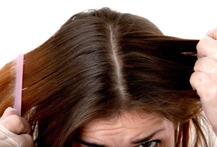 prurito al cuoio capelluto Dermatologia