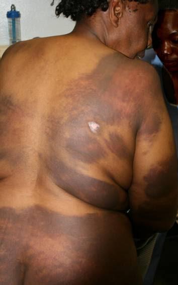 MUGABE'S THUGS BRUTALIZE WOMEN IN ZIMBABWE!
