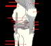 English: Right knee.