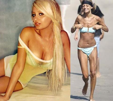 Transtorno Dismórfico Corporal - Anorexia
