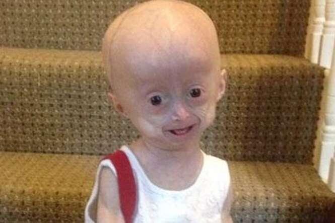 Menina de 5 anos sofre com doença rara que a faz envelhecer 8 vezes mais rápido
