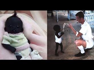 Nace el Niño con la Piel Más Oscura del Mundo - EXPLICACIÓN