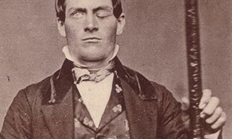 Phineas Gage with the tamping rod that was driven through his head