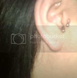Lump On Tragus Piercing The Student Room
