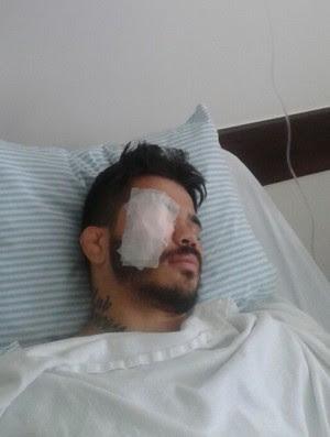 Erick Silva implanta platina no rosto (Foto: Bruno Silva)