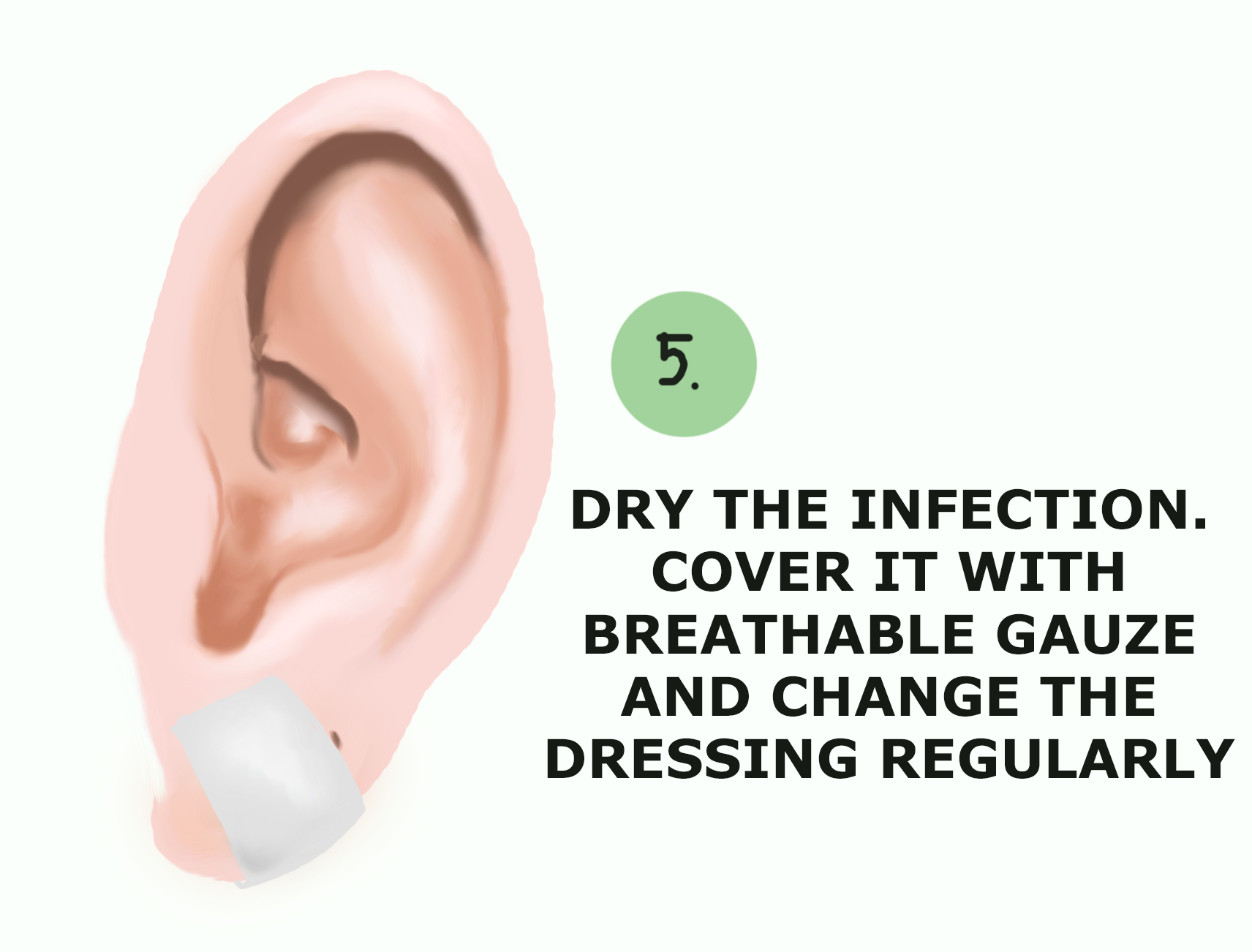 How To Drain Infected Ear Piercing Wound Care Society