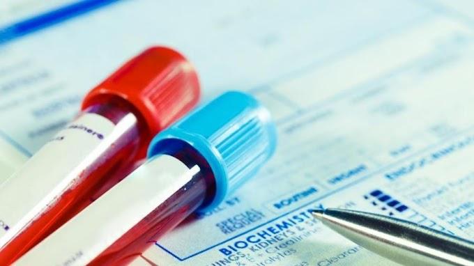 Exame de sangue pode prever se paciente com covid precisará de ventilador