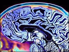 Cérebro (arquivo SPL)