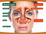 Acute Sinus Pain