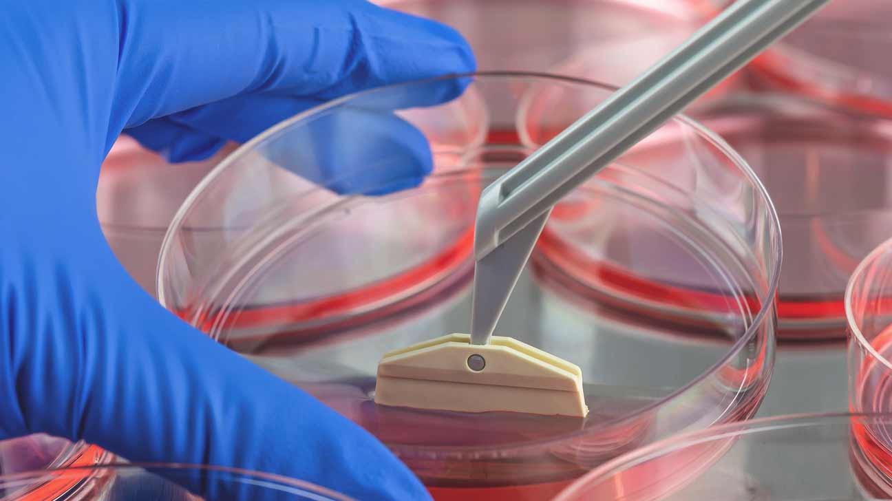 multiple sclerosis stem cell treatment