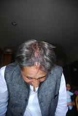 My kama wound shot by marziya shakir 4 year old by firoze shakir photographerno1