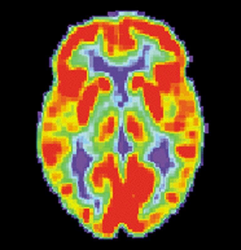 Brain Scans To Help Determine Treatment For Depression ...