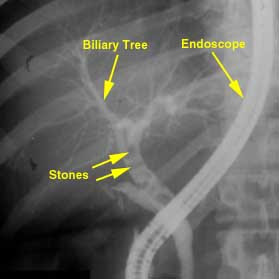 ercp_gallstones_biliary_duct_choledocholithiasis