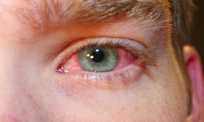 Επιπεφυκίτιδα: Αιτίες και συμπτώματα