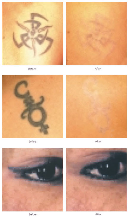 Tattoo Laser Removal Kent | best tattoo removal auckland
