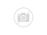 Injury Pyramid Pictures